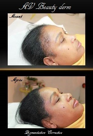 dermopigmentation corrective calvitie
